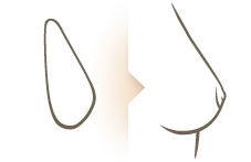 borstvergroting-gevormd-implantaat