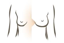 Geholpen bij Kliniek Veldhoven – borstvergroting
